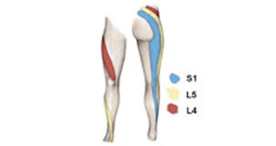 Referred Hamstring Pain