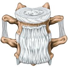 Intervertebral Sprain
