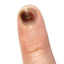 Black Fingernail