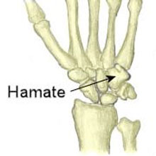 Hook of Hamate Fracture