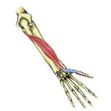 Wrist Bursitis