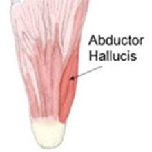 Abductor Hallucis Strain
