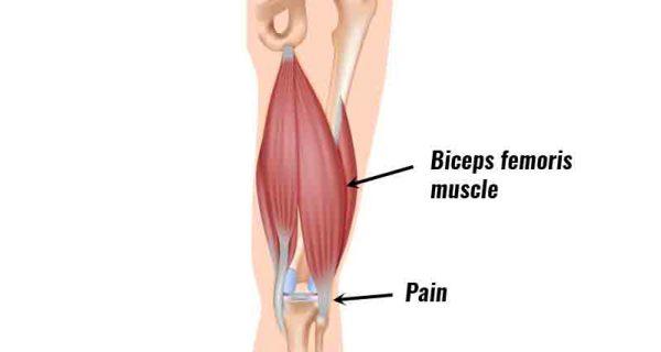 Biceps femoris tendinopathy
