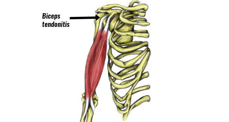 Biceps tendonitis at the shoulder