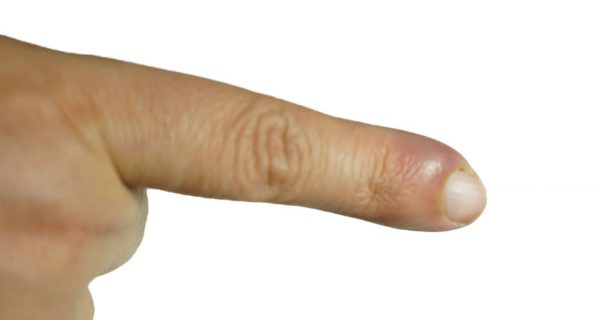 Finger felon cellulitis