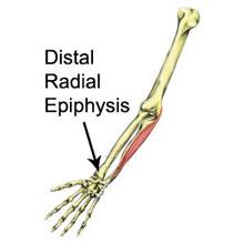 Distal Radial Epiphysis