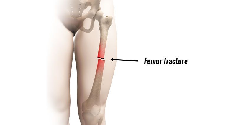 Femur Fracture (Acute) - Broken Thigh Bone Causes and Treatment