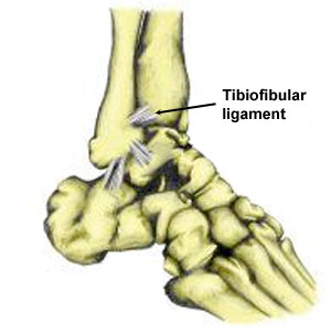 high ankle sprain - tibiofibular ligament