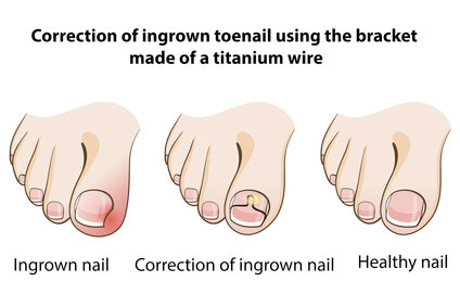 Ingrown Toenails - How To Treat and Cut Ingrowing Nails