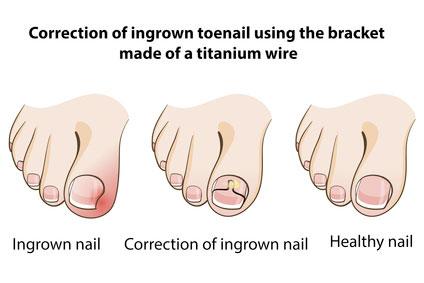 How to heal ingrown toenail