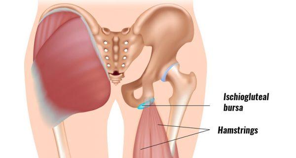 Ischiogluteal bursitis