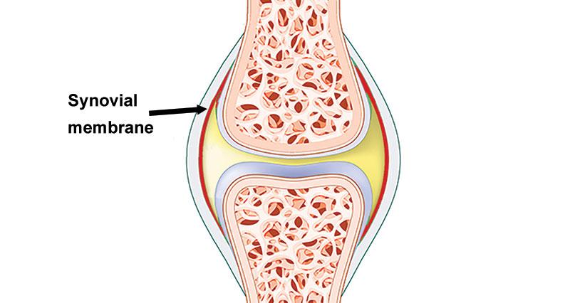 Knee synovitis