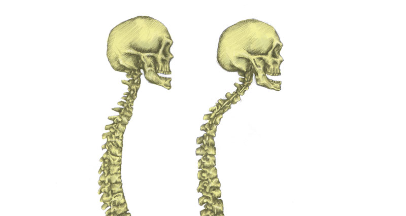 Kyphosis Caused By Poor Posture - Causes, Treatment & Exercises