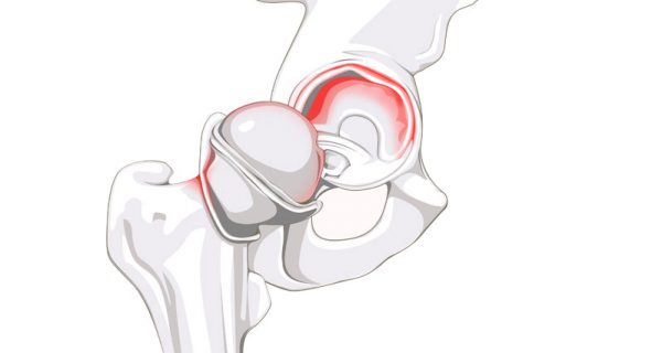 Labral tear of the hip