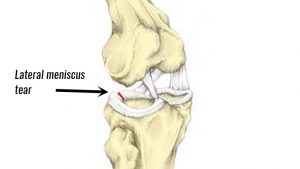 Lateral knee meniscus tear