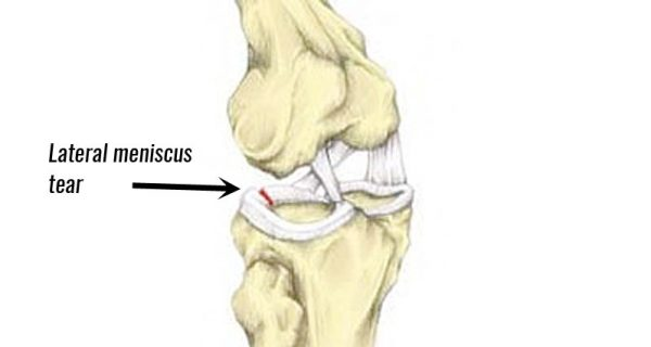 Lateral knee meniscus tear