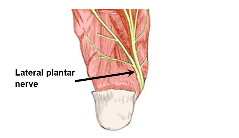 Lateral plantar nerve entrapment