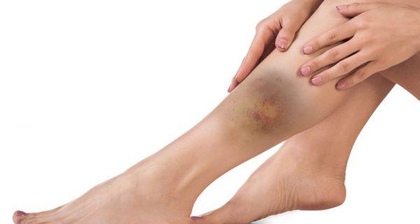 Leg contusion & bruising