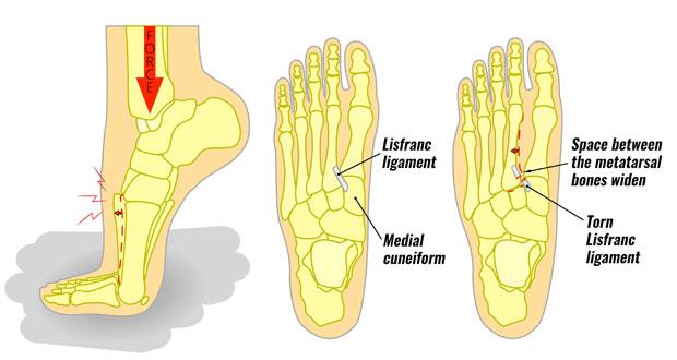 Lisfrancs Injury