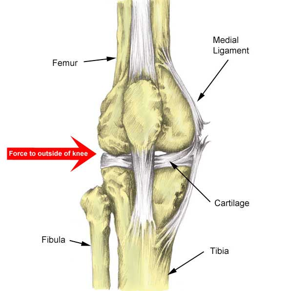 Medial Knee Ligament  Mcl Sprain