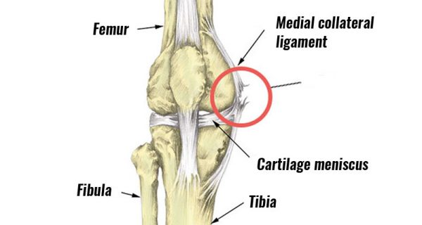 Medial knee ligament sprain MCL