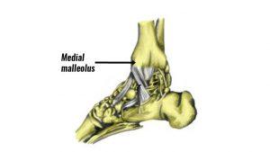 Medial malleolus ankle