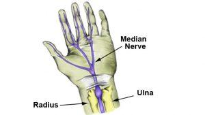 Median nerve injury