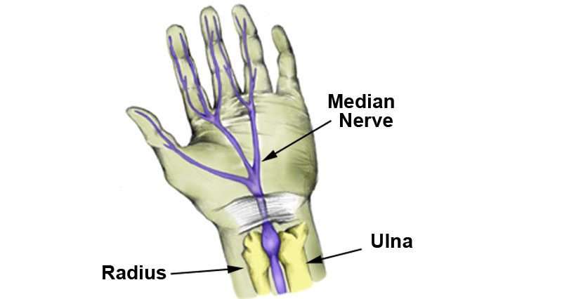 Median nerve injury