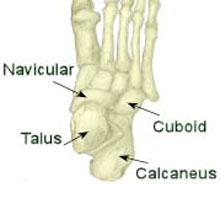 Midtarsal Joint Sprain