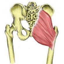 Myofascial Pain - Buttock