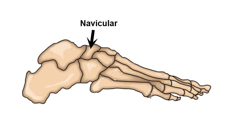 Navicular stress fracture