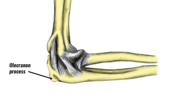 Olecranon fracture