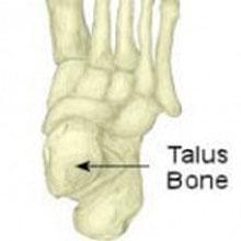 Osteochondral Lesions - Talus