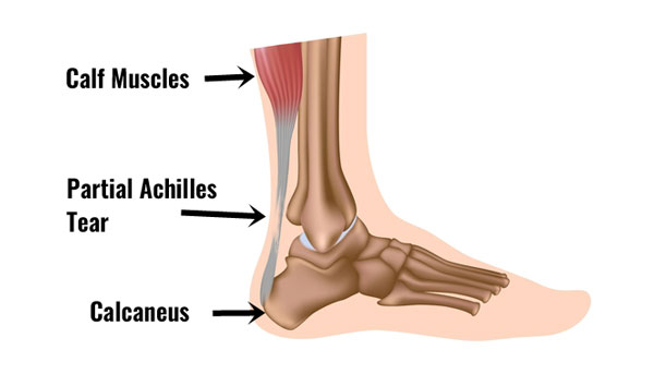 Partial rupture or the achilles tendon