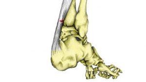 Partial achilles tendon tear