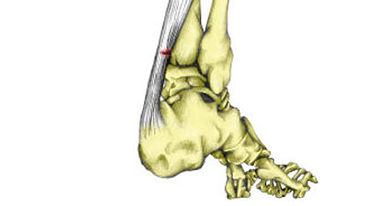 Partial Rupture Of Achilles Tendon Symptoms Causes
