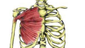 Pec major muscle strain