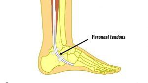 Peroneal tendon dislocation