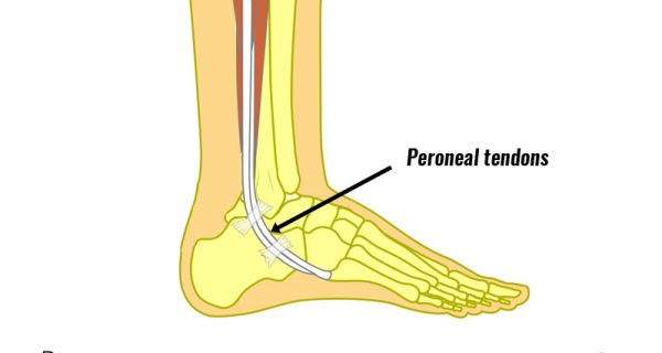 Peroneal tendon dislocation