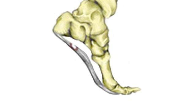 Plantar fascia strain