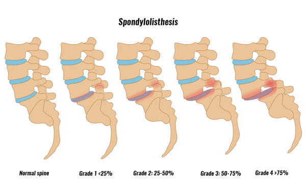 Spondylolisthesis grades