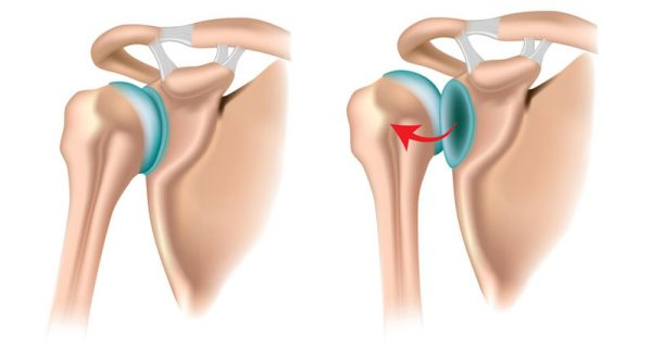 Posterior shoulder dislocation