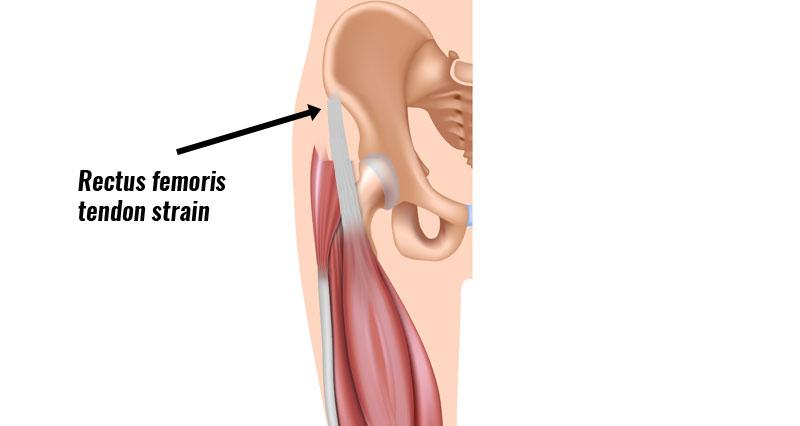 Rectus femoris tendon strain