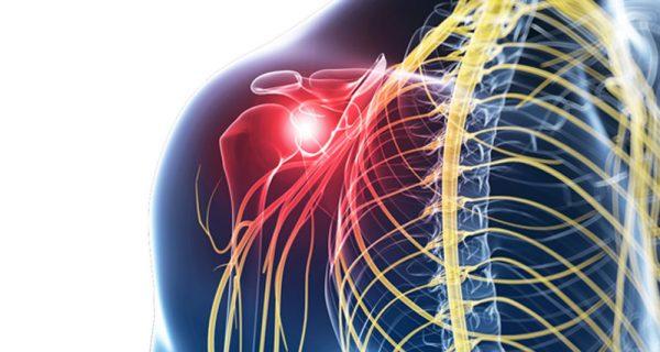 Referred shoulder pain