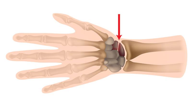 Scaphoid fracture
