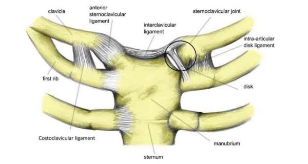 Sternoclavicular injury