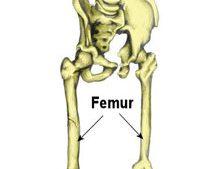 Femur Stress Fracture