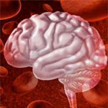 Brain Bleed