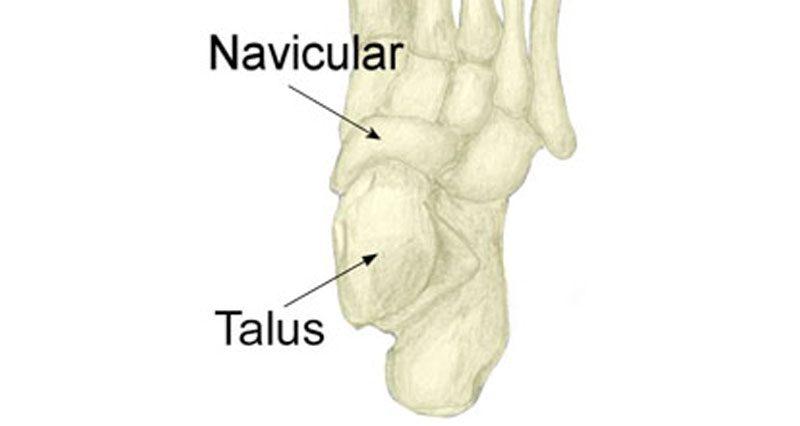 Talar bone