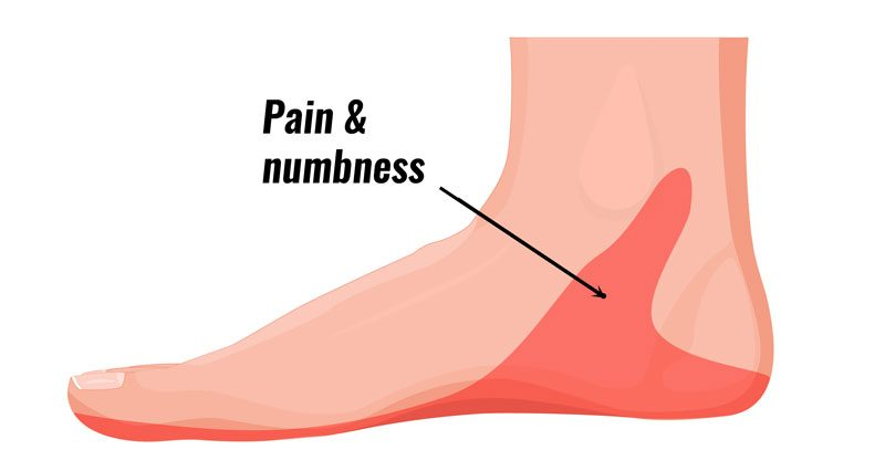 Tarsal Tunnel Syndrome - Symptoms, Causes, Treatment & Exercises
